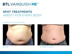 Spot Treatments arent for Every Body in Vanquish ME ith before and afters