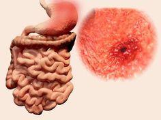 5 jus naturels pour soulager les ulcères gastriques