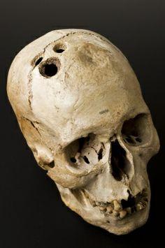 Calavera de la Edad de Bronce a la que se la había practicado la trepanación (Jericó, Israel/Palestina, 2200-2000 a.C.). El cráneo muestra cuatro agujeros separados realizados por el proceso quirúrgico de la trepanación, que habían comenzado claramente a sanar. Esto sugiere que aunque muy peligroso, el procedimiento fue de ninguna manera fatal.  El cráneo fue excavado de una tumba en 1958 y presentado a la colección Wellcome por Dame Kathleen Kenyon (1906-1978).