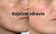 Natrite si toto na jazvy, vyrážky či škvrny na tvári a sledujte ako zázračne miznú za pár minút! - Báječné zdravie Health And Beauty, Health Fitness, Hair Beauty, Hairstyle, Makeup, Face, Inspiration, Healthy, Diet