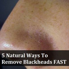 How To Get Rid Of Blackheads Fast: 15 Home Remedies