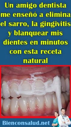 Un amigo dentista me enseñó a elimina el sarro, la gingivitis y blanquear mis … A dentist friend taught me how to remove tartar, gingivitis and whiten my teeth in minutes with this natural recipe – Bien con Salud Calendula Benefits, Lemon Benefits, Matcha Benefits, Health Benefits, Health Tips, Oral Health, Health Care, Vicks Vaporub, Thyme Tea