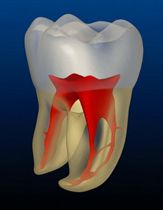 #Root #Canal #Therapy