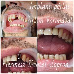 Első alkalom során implantálás, majd három hónap múltán lenyomatvétel, következő találkozáskor fogpróba, átadás. Fitbit, Dental, Teeth, Dentist Clinic, Tooth, Dental Health
