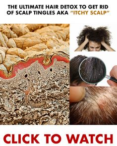 Naturally exfoliate, and cleanse scalp sensations, and tingles with WOW Apple Cider Vinegar shampoo! Our formula balances pH, is antibacterial, and deeply moisturizing giving the scalp a second chance it SO deserves! Apple Cider Vinegar Shampoo, Hair Detox, Curly Hair Styles, Natural Hair Styles, Locks, Hair Remedies, Peeling, Tips Belleza, Hair Health