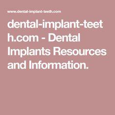 dental-implant-teeth.com-Dental Implants Resources and Information.