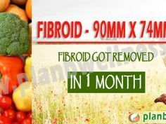 130 Best Uterine Fibroid Remedies images in 2018 | Uterine