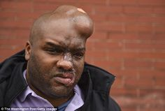No jail time: Former Capitol Hill staffer Donny Ray Williams is disfigured from an acid attack that occurred years after he raped two women. A judge on Friday agreed with a prosecutor's recommendation that he not serve jail time due to his serious injuries, for which he's undergone 20 surgeries and still faces more life threatening operations