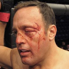 Swollen eye on Kevin James from Here Comes the Boom. Application by Richard Redlefsen. Appliances provided by WM Creations. #mma #mmafighter  #stitch #beating #mmalife #makeup #makeupfx #makeupartist #makeupfxartist #makeupeffectsartist #siliconemakeup #specialfxmakeup #siliconeprosthetics #specialeffectsmakeup #specialfx #specialeffects #specialfxartist #specialmakeupfx #siliconemakeup #siliconefxmakeup #siliconeprosthetic #effectsmakeup #effectmakeupartist #fx #fxartist #fxmakeup…