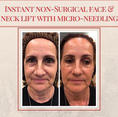 Micro-needling is th...