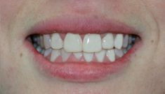 Cosmetic Dentist Sydney, TOP single provider of Invisalign in Australasia - Cosmetic Dentistry, Dental Implants, Veneers, Teeth Whitening. Sydney & Lane Cove. Payment Plans Available. Affordable Dental Implants, Veneers Teeth, Dental Fillings, Smile Dental, Top Single, Dental Center, Dental Crowns, Good Smile, Cosmetic Dentistry