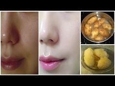 Patates ile kalıcı cilt beyazlatma - Kadında Yaşam