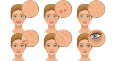 What Is Wine Doing To Your Face? How Bad Diet Habits Destroy Your Complexion