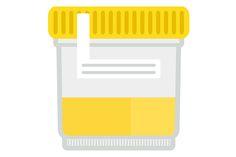 Sa intelegem examenul de urina | Reginamaria.ro