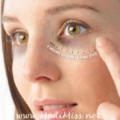 """Remedies for Dark Circles ~ """"Just massage gently around the eyes with few drops of almond oil for a minute.Wipe it off with cotton after 15 minutes.Mix cucumber juice and potato juice, apply it on the dark circles and wash it off after 20 minutes!"""""""