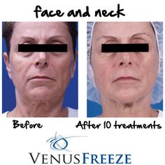 The face and neck can leave a lasting impression. With #VenusFreeze, the appearance of fine lines and wrinkles are significantly diminished. Photo courtesy of Gitit Zucker, MD. #VenusFreeze #VenusBeauty
