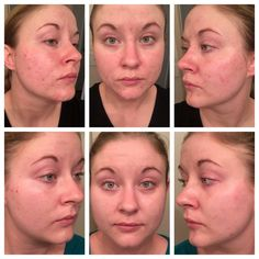 Breakouts can be Unpredictable, Unreasonable and Unfair! But it is no longer a worry for PC Cassandra, since she took control with our UNBLEMISH Regimen!! ~ Clinically proven to combat the entire acne cycle - helps unclog pores, clears acne blemishes and calms your complexion to keep pimples, blackheads and post-acne marks from making an unwelcome appearance on your face...and in your life. With our 60 day trial you can get back your healthy skin! https://iarman.myrandf.com/Shop/Unblemish
