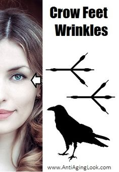 Crows feet wrinkles for anti aging laser