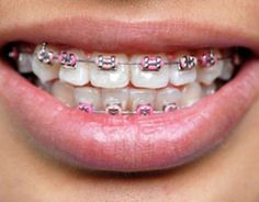 Light Red Braces