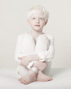 Albinismo (35)Bambino                                                                                                                                                                                 More