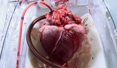A donor heart beating in a mechanical system which keeps it warm, oxygenated, with nutrient enriched blood pumping through.