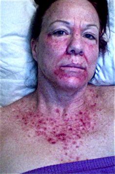 chemo cream for skin cancer