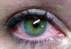# Watery Dry Eye- How to Stop Tear Over Production