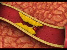 Remédio de passas para desentupir artérias