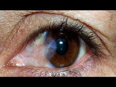 Receita Caseira Para Melhorar a Sua Visão e Proteger de Catarata e Glaucoma I Dicas de Saúde - YouTube