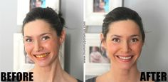 Natural Teeth Whitening Remedies whitening-teeth-before-after-pic - They say a smile is the prettiest thing you can wear. Turmeric teeth whitening is a surprisingly effective way to naturally whiten your teeth at home. Teeth Whitening Remedies, Natural Teeth Whitening, Whitening Kit, Skin Whitening, Snapchat, Routine, Las Vegas, Circulation Sanguine, Healthy Teeth