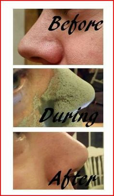 DIY Anti Aging Skin Care Recipes:Though some prefer buying ready-made, unscented lotion as a base for their beauty creams, making it from scratch is relatively Anti Aging Tips, Anti Aging Skin Care, Epoch Mud Mask, Marine Mud Mask, Glacial Marine Mud, Snapchat, Facial, Anti Aging Treatments, Mariana
