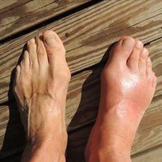 Home Remedies For Gout, Natural Remedies For Gout, Gout Remedies, Health Remedies, Rheumatische Arthritis, Rheumatoid Arthritis Treatment, Inflammatory Arthritis, Rheumatoid Arthritis, Recipes