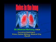 محاضرة الدكتور / أحمد رفاعي : Holes in the Lung - YouTube
