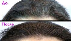 Эта мощная смесь успешно устраняет седые волосы. Кроме того, она…