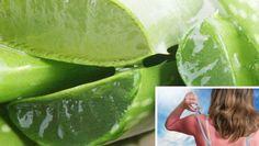 Gyógynövények a napégés gyógyítására Honeydew, Celery, Fruit, Vegetables, Vegetable Recipes, Veggies
