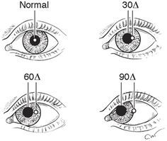 Diagnostic Evaluation of Strabismus and Torticollis Opthalmic Technician, Retinal Degeneration, Optometry School, Nerve Palsy, Eye World, Eye Anatomy, Eye Facts, Vision Therapy, Eye Exam