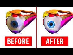 10 Great Exercises to Improve Your Eyesight - YouTube Best Eczema Treatment, Fungus Treatment, Cellulite Treatment, Fungal Nail Infection, Natural Health, Natural Cures, Muscle Fitness, Health Fitness, Circular Motion
