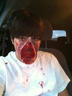 """My son's """"zipper face"""" Halloween makeup last year. He did a great job and all by himself!"""