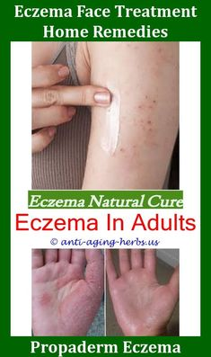 Have We Found The Toddler Eczema Cure