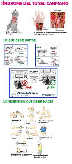 Síndrome del túnel carpiano, que es, que debes evitar y que ejerecicios debes hacer #fisioterapia  http://www.logarsalud.com/2015/01/22/dolor-t%C3%BAnel-carpiano-que-es-que-evitar-soluciones/