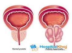 How to cure prostate enlargement by ayurveda ?