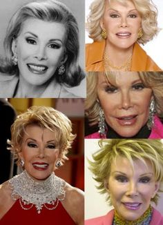 to Have the Plastic Surgery? See the Joan Rivers Plastic Surgery First!Want to Have the Plastic Surgery? See the Joan Rivers Plastic Surgery First! Celebrities Before And After, Celebrities Then And Now, Bad Plastic Surgeries, Plastic Surgery, Joan Rivers, Under The Knife, Bruce Jenner, Hollywood, Stars Then And Now