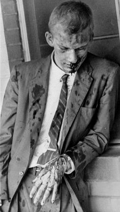 American pacifist James Zwerg after being beaten by a mob in Montgomery, Alabama in 1960 as part of the freedom riders. Zwerg volunteered to leave the bus first upon arriving in Montgomery, knowing he'd bear the brunt of the violent crowd's aggression. Jackson Mississippi, Black Power, Black Art, Martin Luther King, Freedom Riders, Freedom Fighters, Non Plus Ultra, Civil Rights Movement, Rosa Parks