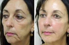 Want excellent ideas concerning skin care? Head out to my amazing site! Diy Aloe Vera Gel, Primer For Oily Skin, Anti Aging Supplements, Skin Care Remedies, Beautiful Lips, No Photoshop, Beauty Review, Herbalife, Anti Aging Skin Care