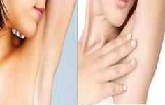 How To Lighten Dark Underarms Quickly -  Dark coloration under the arms is mainly a response for exposing the skin in this area to one or several elements that are harmful for the skin like alcohol based deodorants, lack of ventilation in the area, shaving, not wearing cotton tops, and dead skin cells build ups, However dark coloration...
