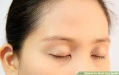 Vermeiden Sie, Ihre Augen zu reiben. Swollen Eyelids Remedy, How To Get Rid, Good To Know, Beauty Hacks, Pictures, Wearing Glasses, Eye Drops, Home Remedies, Photos