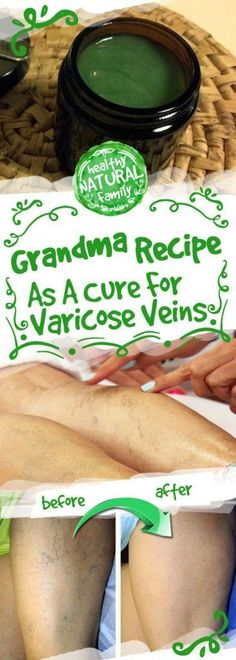 IF YOU SUFFER FROM VARICOSE VEINS YOU SHOULD RUB YOUR FEET WITH THIS OIL! IT REALLY HELPS!