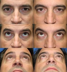 Eyelid Lift (Blepharoplasty) Photo Gallery Your decision to consider reconstructive, cosmetic surgery or plastic surgery to enhance your appearance is an important step…perhaps the fulfillment of your personal dream. Eyelid Lift, Saint Clair Shores, Liposuction, Plastic Surgery, Photo Galleries, Breast, Technology, Gallery, Tecnologia