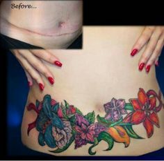 C-section cover up
