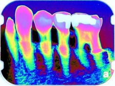 Colorization of a digital radiograph in dentistry